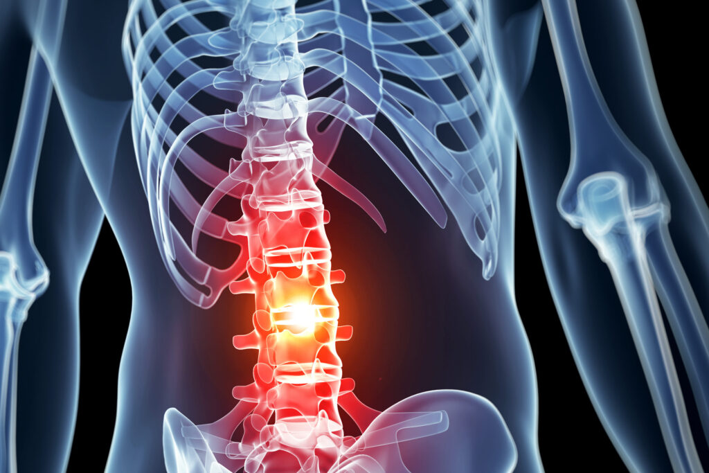 """Researchers invent an """"EpiPen"""" for spinal cord injuries that can prevent paralysis"""